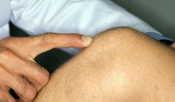 crepitus knee treatment